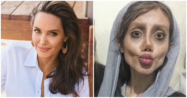 Plastic surgery gone wrong in wish to become anjolina jolly